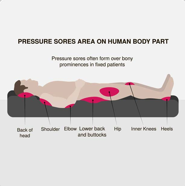 How to take care of bedridden patient at home care24 for Best mattress to prevent bed sores